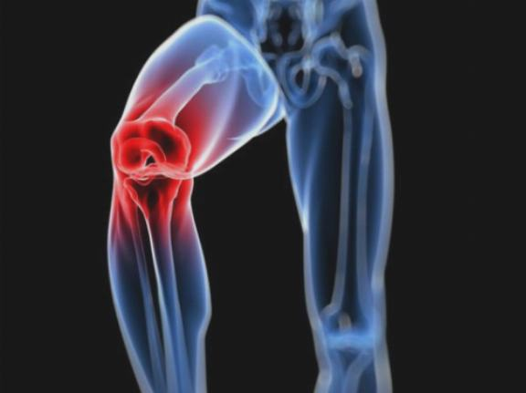 a chondrolone segít a térd kezelésében