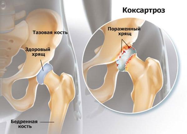 a csípőfájás izmai)