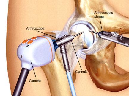 A csípőízület ízületi sérülése 2 fok - tünetek és a betegség kezelése