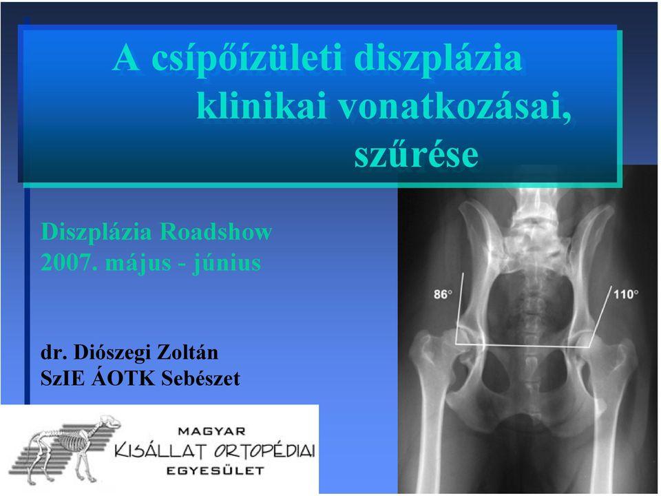 a csípőízületek kezelésének maradék diszplázia)