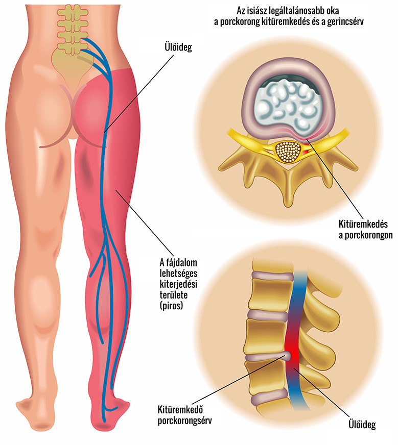 a gerinc ízületének gyulladása)