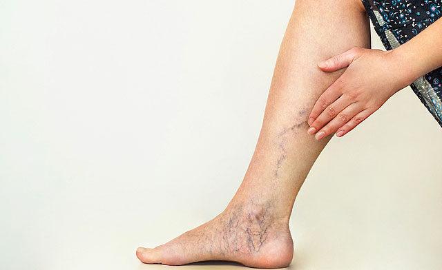A lábak és a karok ízületei fájnak és duzzadnak, Női Egészség Éve 2020