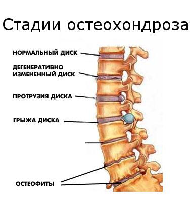 A gonarthrosis 1 térdízület teljes leírása: tünetek és kezelés - Kyphosis -