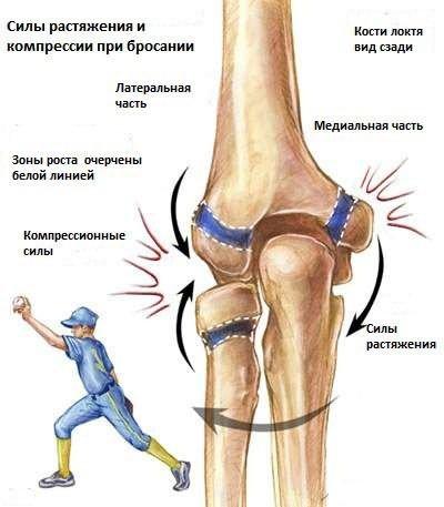 a könyökízület oldalsó epicondylitis-e, mint kezelni)