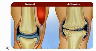 a térd artrózisa 1 fokkal kezelhető