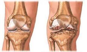 a térd deformáló artrózisának kezelése