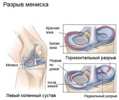 a térdízület fájdalma meghosszabbítást okoz)