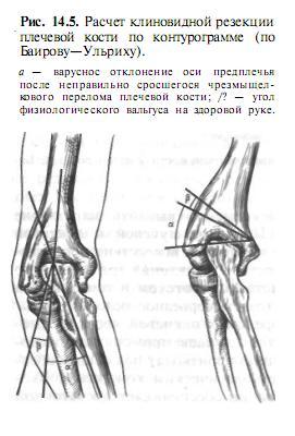 a térdízület oldalsó ágának sérülése 1 fokkal a gombok gyulladása