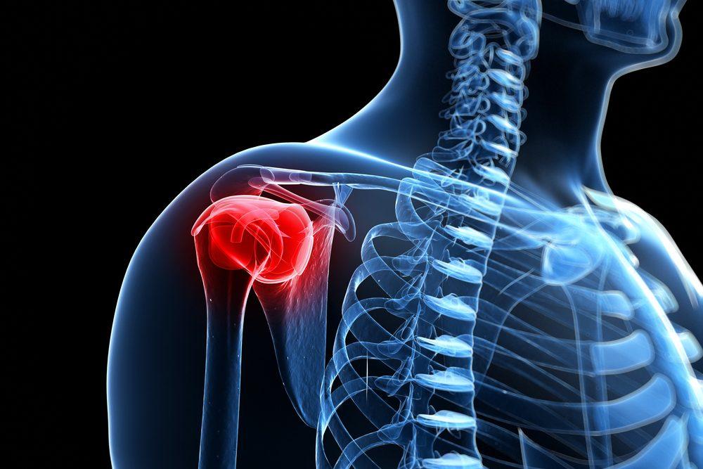a vállízület kezelés mésztartalmú bursitisz alapvető az ízületi fájdalmakhoz