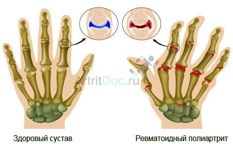 rheumatoid arthritis lehetséges az izületek melegítése)