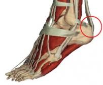 Achilles-ín fájdalma)