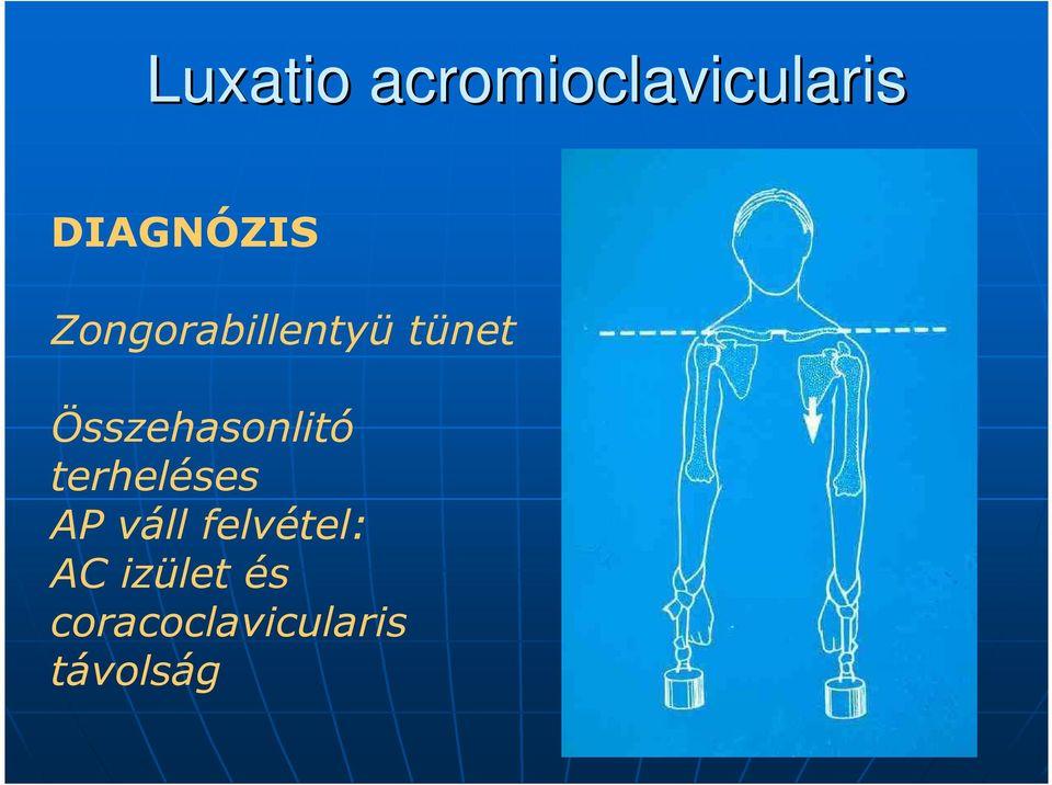 az acromioclavicularis ízületi tünetek