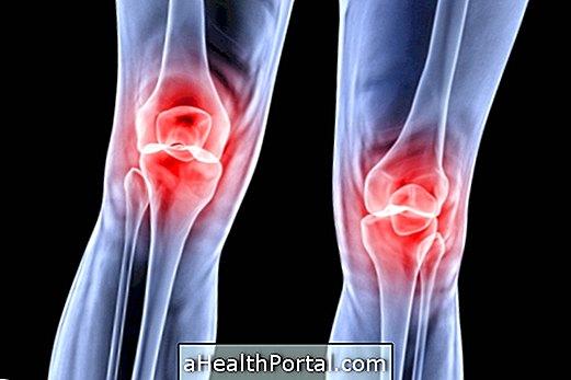 mi a térd patellofemoralis artrózisa