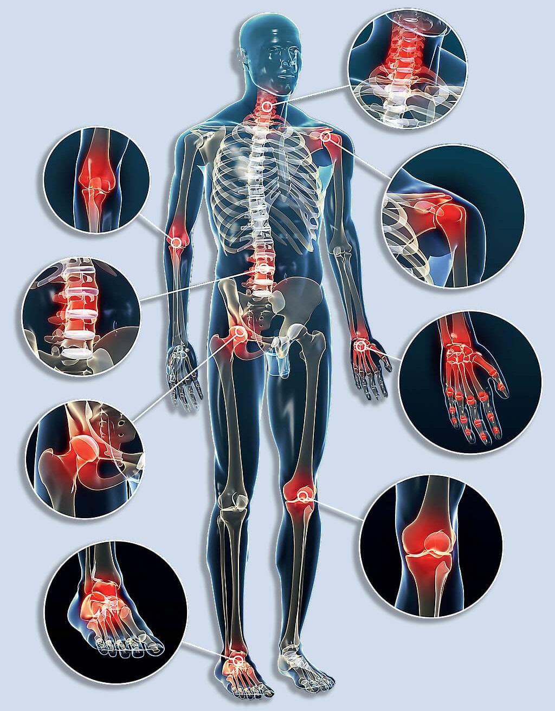 minden ízület és gerinc fáj, mit kell tenni