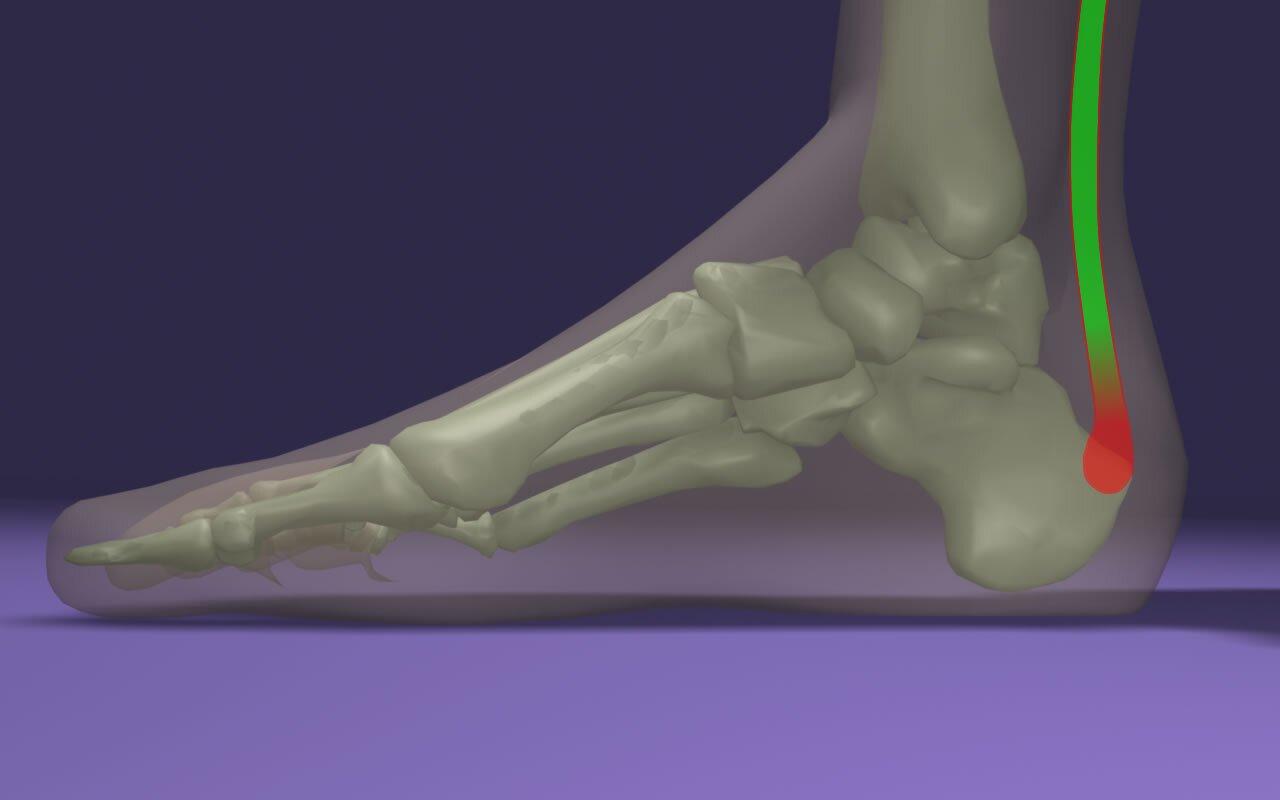 Melyek az Achilles-ín fájdalom okai?