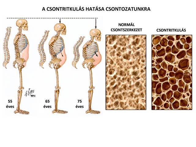 csontritkulás csontritkulás