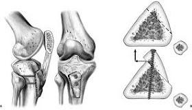 Orvosok Lapja: Csípőprotézis a XXI. században | Ortopédiai Klinika