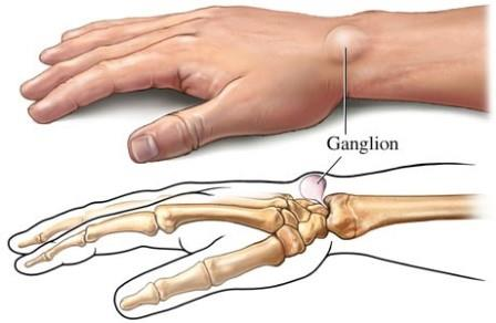 a gyűrűs ujjízület duzzanata