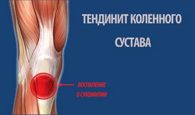 a térd deformáló artrózisának diagnosztizálása)