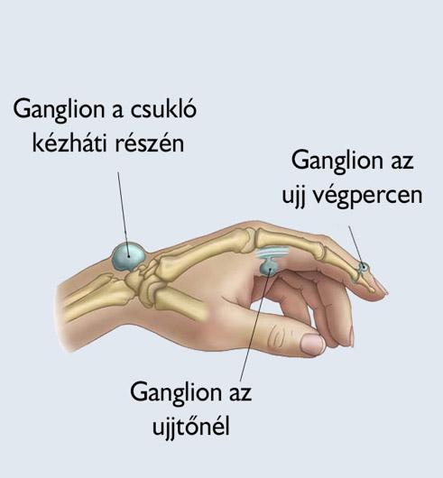 ulnar ízületeket okoz a kézízületek sérülései
