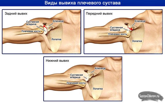 könyök-sprain kezelés