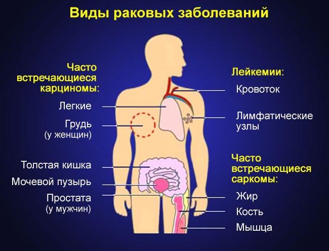 deformáló artrózis a térdízület 1-2 fokos minden ízület viszont fáj, mi az