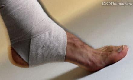 A bokafájdalom lehetséges okai - HáziPatika