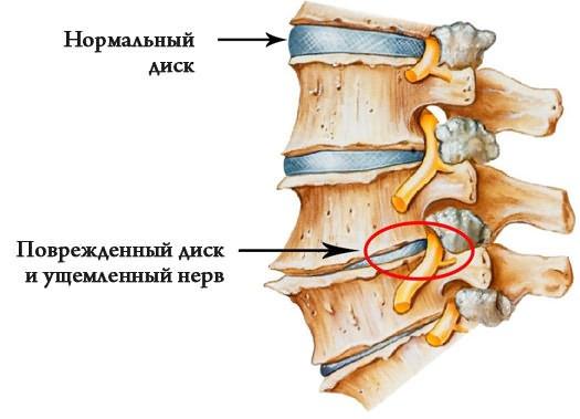 éles húzási fájdalom a csípőízületben