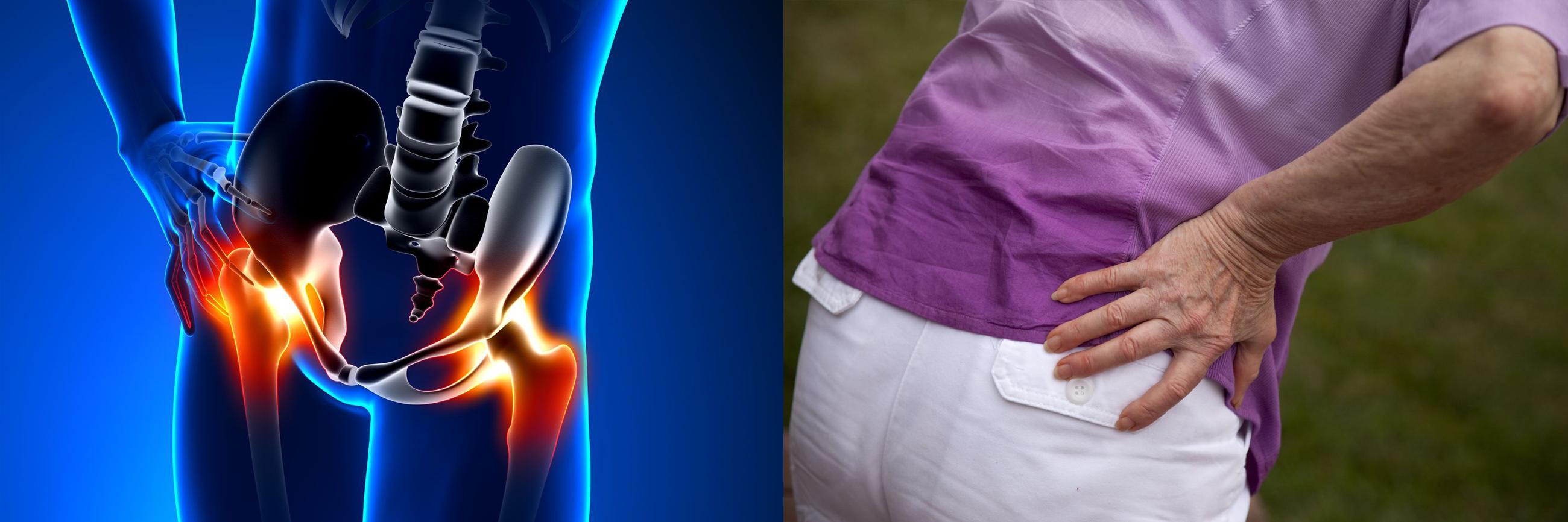 miért fáj a csípőízület császármetszés után
