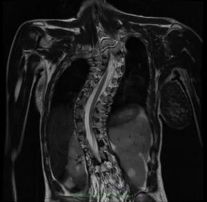 A méhnyak gerincének nyálkahártyájú artrózisa - tünetek, kezelés és megelőzés
