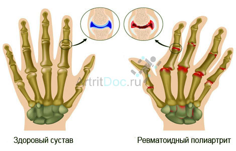 rheumatoid arthritis lehetséges az izületek melegítése