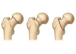 az ízület fáj a guggolás után a kézízületi betegség