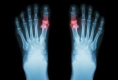 first metatarsophalangeal joint osteoarthritis)