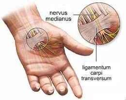 fáj az ujjak ízületei és zsibbadtak