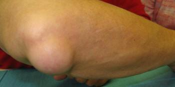 1. fokú csípőízület artrózisa és kezelése zúzódások fájnak ízületeket