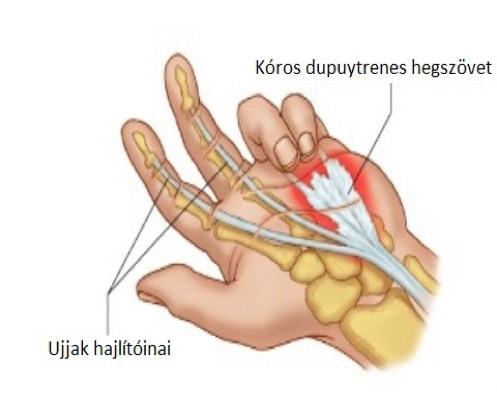 Ínhüvelygyulladás: okok, tünetek, kezelés és megelőzés - fájdalomportározsakert-egervar.hu