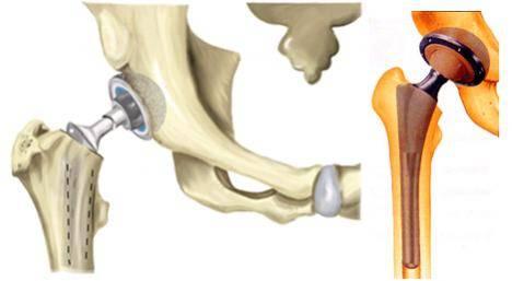 fájdalom az endoprotesztika csípőjén ujjízület fájdalma véraláfutás után