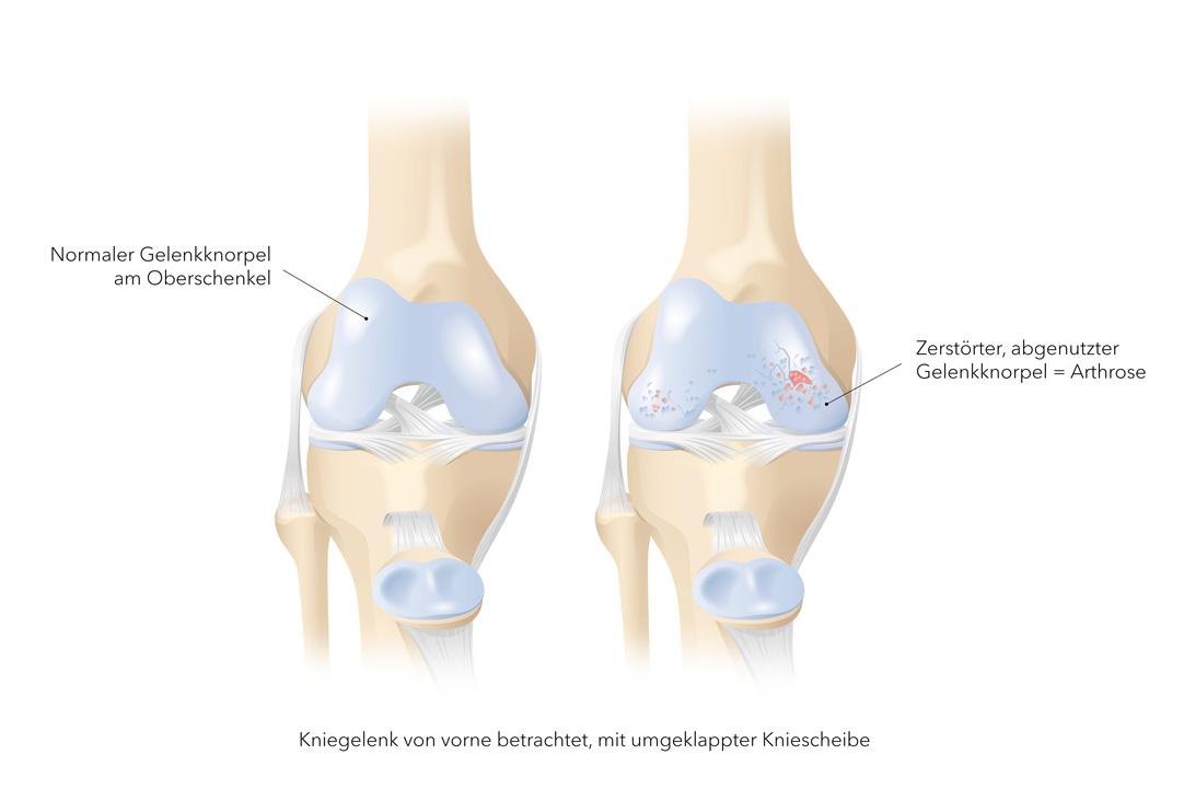 gonarthrosis és synovitis