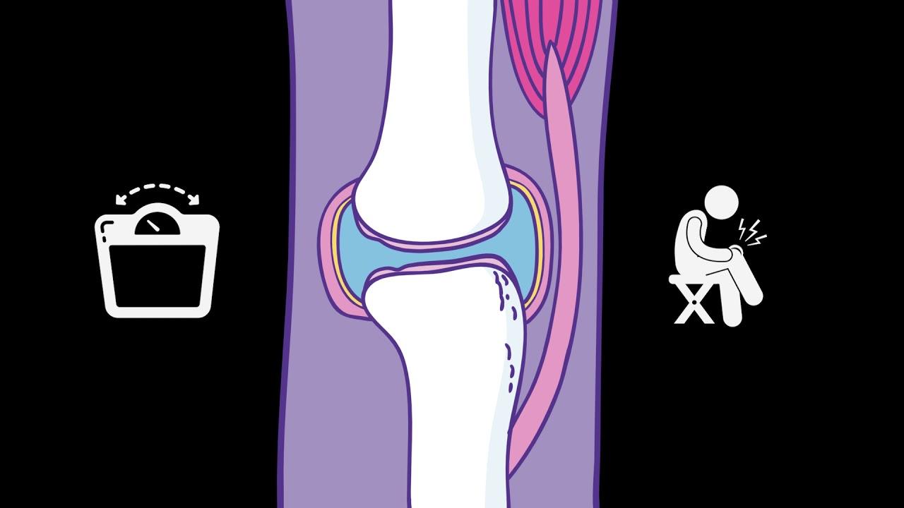 Gázinjekciós kezelés artrózis esetén. A hüvelykujj ízületei ízületi gyulladása
