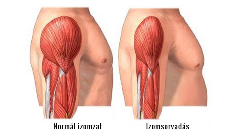 Hormonbetegségek