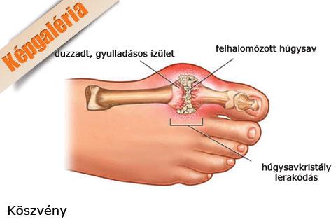 nagy lábujjgyulladás