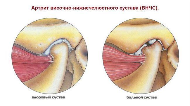 milyen injekciókat kell tenni ízületi fájdalmak esetén csípő-sprain helyreállítási idő
