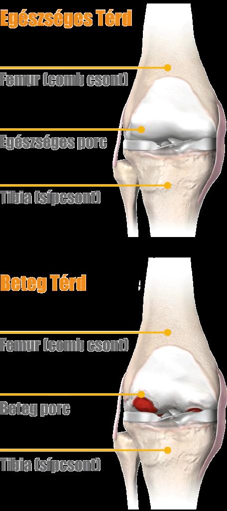 teraflex a térd ízületi gyulladás kezelésében
