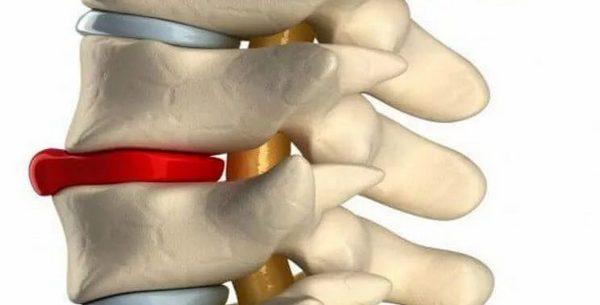 csípőízületek kezelése égő fájdalom a hüvelykujj ízületében