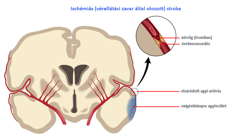 ízületi fájdalom stroke után