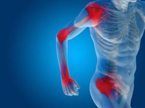 a térd deformáló artrózisának diagnosztizálása módszer a vállízület artrózisának kezelésére